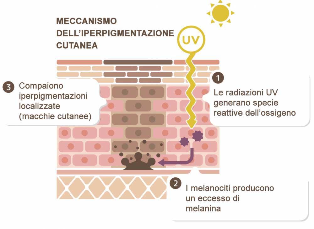 Melanina e macchie della pelle
