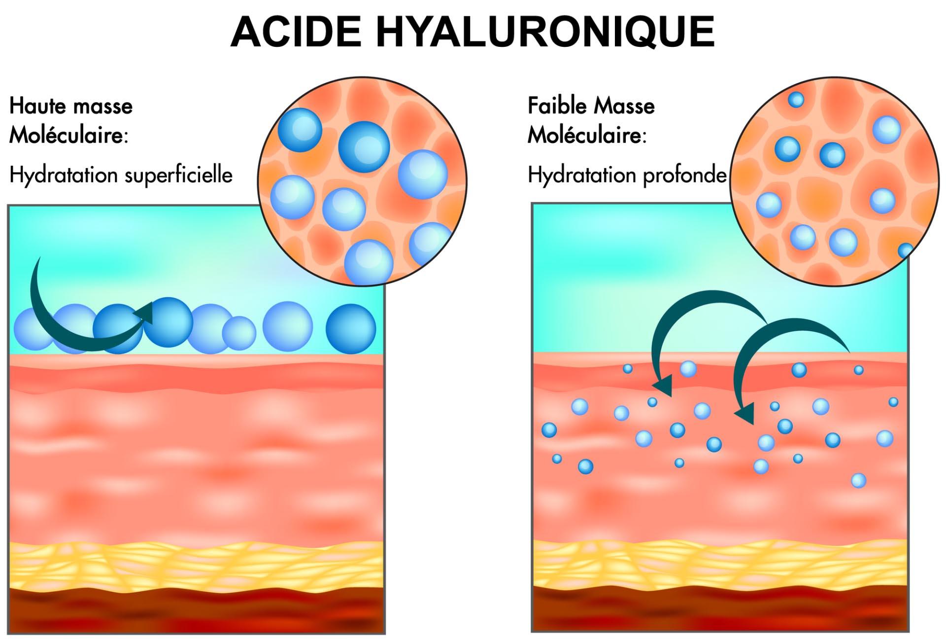 Acide Hyaluronique hydratation