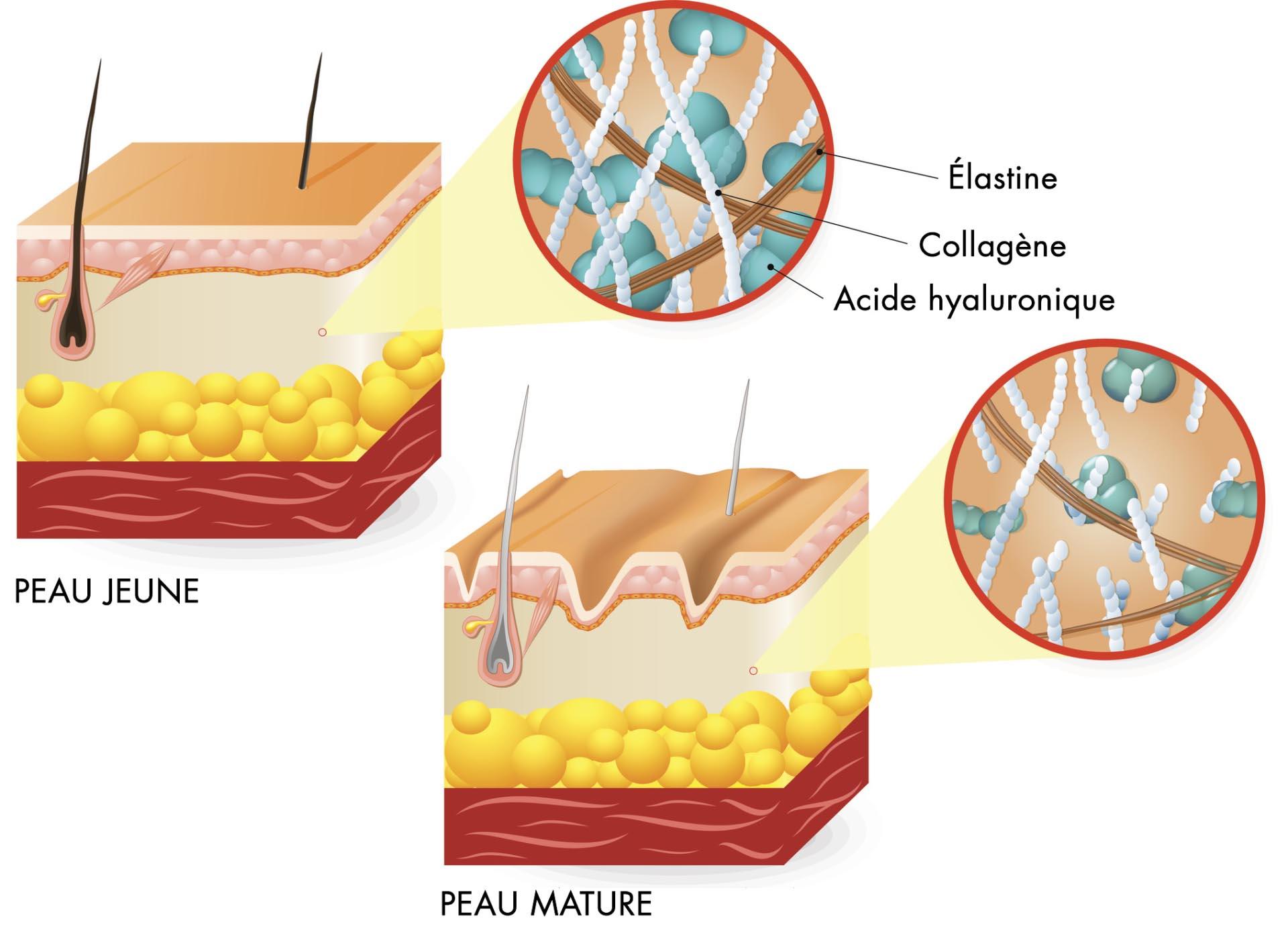collagene acide hyaluronique