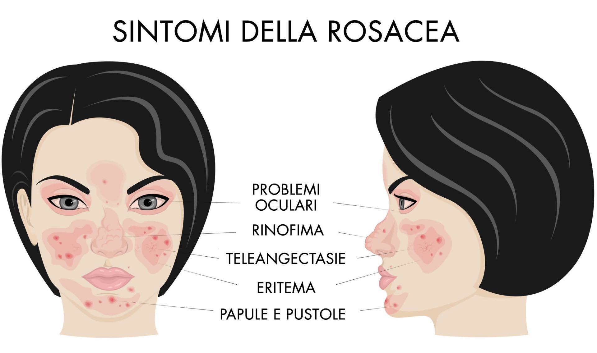 Sintomi Rosacea